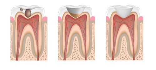tandfyllningar